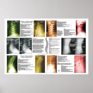 Affiche spinale lombaire cervicale de poster