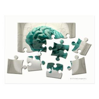 Analyse de cerveau, illustration conceptuelle carte postale