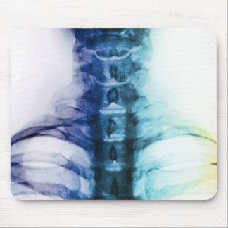 Art cervical de rayon X de Digitals Tapis De Souris