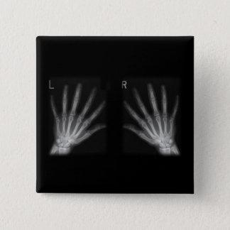 Badge Carré 5 Cm Droit supplémentaire et mains gauches de rayon X