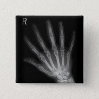 Badge Carré 5 Cm Main droite supplémentaire de rayon X de chiffre