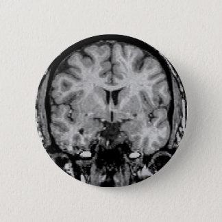 Badges IRM cérébral, tranche coronale