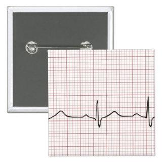 Battement de coeur d'ECG sur le papier de graphiqu Badges Avec Agrafe