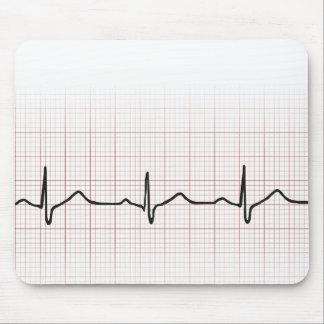 Battement de coeur d'ECG sur le papier de graphiqu Tapis De Souris