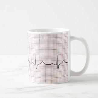 Battement de coeur d'ECG sur le papier de graphiqu Tasse À Café