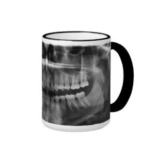 Canette Rayons X Radiologie Mug Ringer