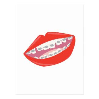 Carte Postale Dents de croisillons