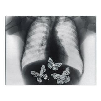 Carte Postale Rayon X des papillons dans l'estomac