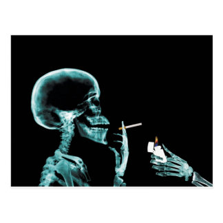 Carte Postale rayons X de tabagisme