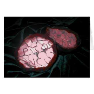 Cartes Boîte de cerveau