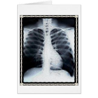 Cartes Coffre de rayon X