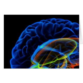 Cartes Image de rayon X du cerveau