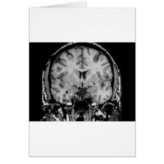 Cartes IRM cérébral, tranche coronale