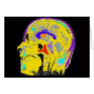 Cartes L'IRM colorized de la marque
