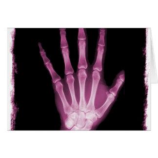 Cartes Main rose de squelette de rayon X