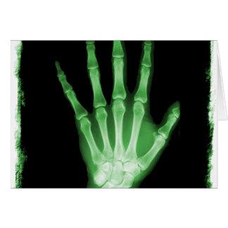 Cartes Main verte de squelette de rayon X
