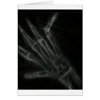 Cartes Rayon X cassé de main