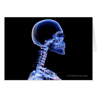 Cartes Rayon X des os dans le cou