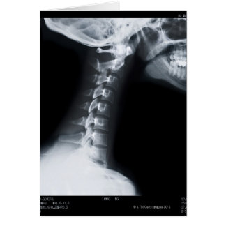 Cartes Rayon X des vertèbres de cou comprenant la