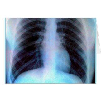 Cartes Squelette de rayon X de cage thoracique