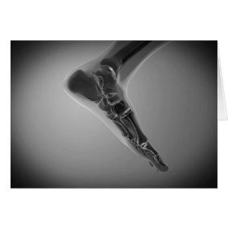 Cartes Vue de rayon X du pied humain 4