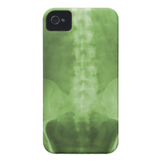 Cas de l'iPhone 4/4s d'art de rayon X de Digitals Coques iPhone 4 Case-Mate