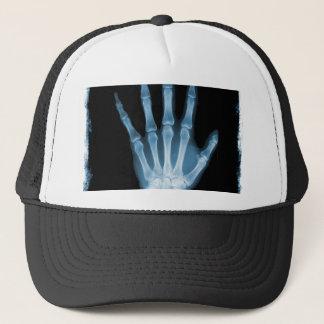 Casquette Main bleue de squelette de rayon X