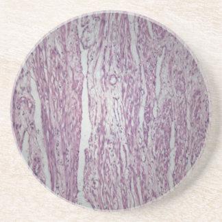 Cellules de tissu humain d'utérus avec le tumo dessous de verres