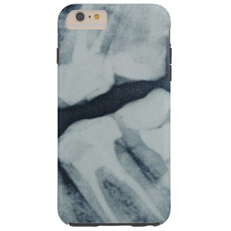 Coque iPhone 6 Plus Tough Plan rapproché d'un rayon X dentaire