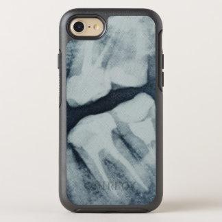 Coque OtterBox Symmetry iPhone 8/7 Plan rapproché d'un rayon X dentaire