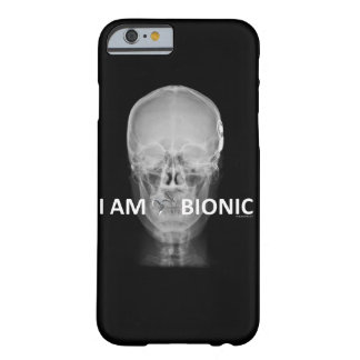 coque radio coque barely there iPhone 6