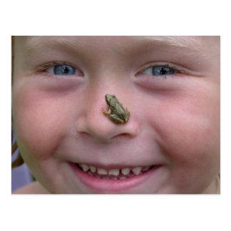 Grenouille sur le nez carte postale