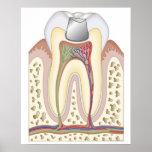 Illustration du remplissage dentaire poster