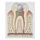 Illustration du remplissage dentaire posters