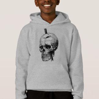 Le crâne de Phineas Gage