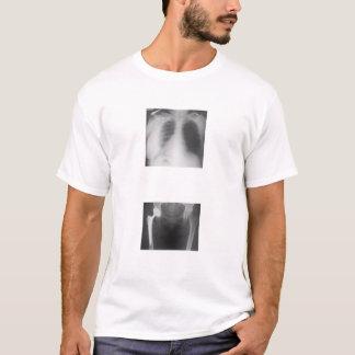Ma hanche juste fendue de la tristesse t-shirt