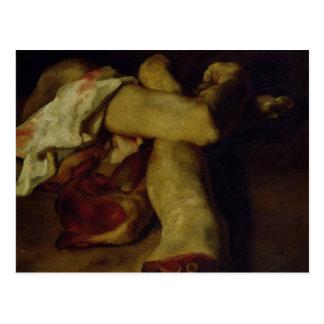 Morceaux anatomiques carte postale