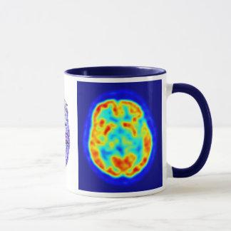 Mug Image de cerveau