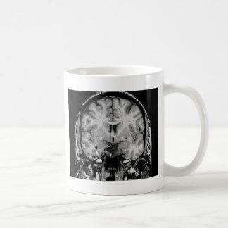 Mug IRM cérébral, tranche coronale