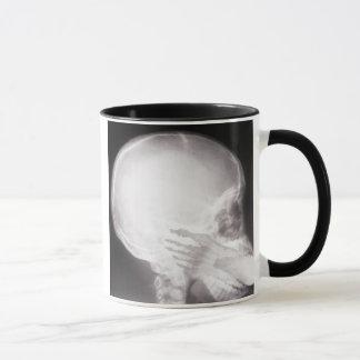 Mug Pied dans le rayon X de bouche