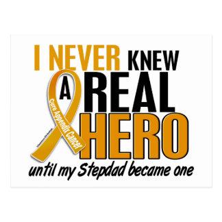 N'a jamais connu un Cancer d'annexe de Stepdad du Carte Postale