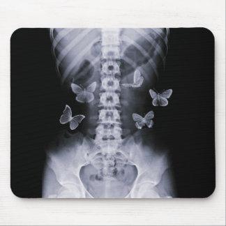 Papillons conceptuels Mousepad de rayon X Tapis De Souris