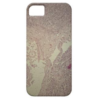 Peau humaine avec le carcinome malpighien coque iPhone 5 Case-Mate