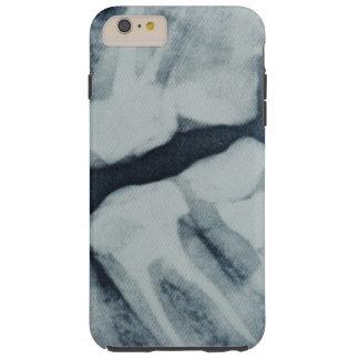 Plan rapproché d'un rayon X dentaire Coque iPhone 6 Plus Tough