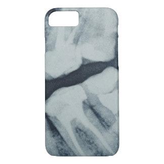 Plan rapproché d'un rayon X dentaire Coque iPhone 7