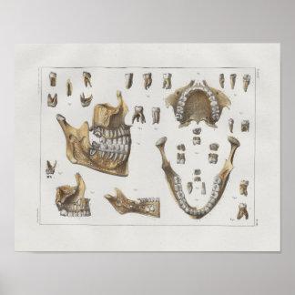 Poster Copie 1867 vintage dentaire d'anatomie de dents de