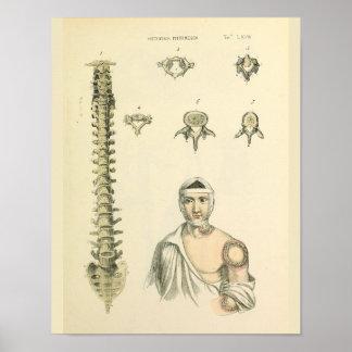 Poster Copie d'art d'anatomie de vertèbres de colonne