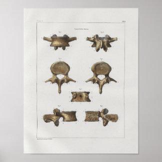 Poster Copie vintage d'anatomie de 1867 os spinaux de