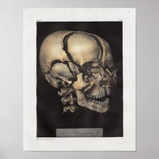 Poster Copie vintage d'anatomie de crâne de 1867 humains