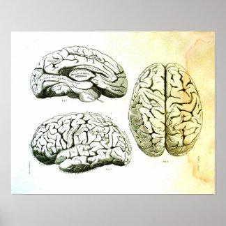Poster Illustration médicale de l'esprit humain